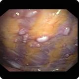 5500cc5c0dda4 Meso sarcomatoid