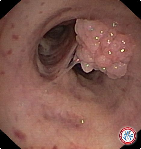 fibriephitelial polyp